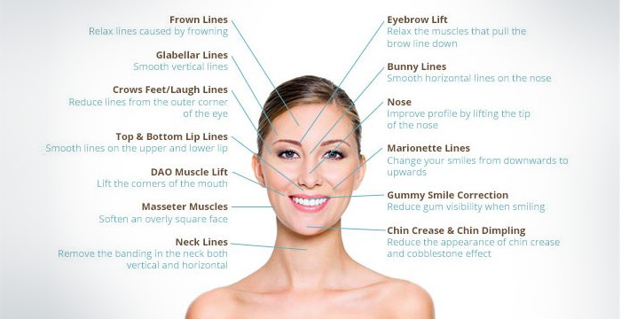 Injectable & Fillers - Female Face Treatable Parts