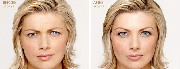 Injectable & Fillers - Botox